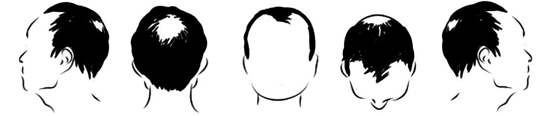 ángulos de la cabeza