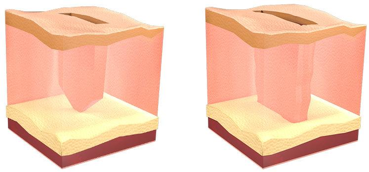 incisiones realizadas con la técnica del zafiro