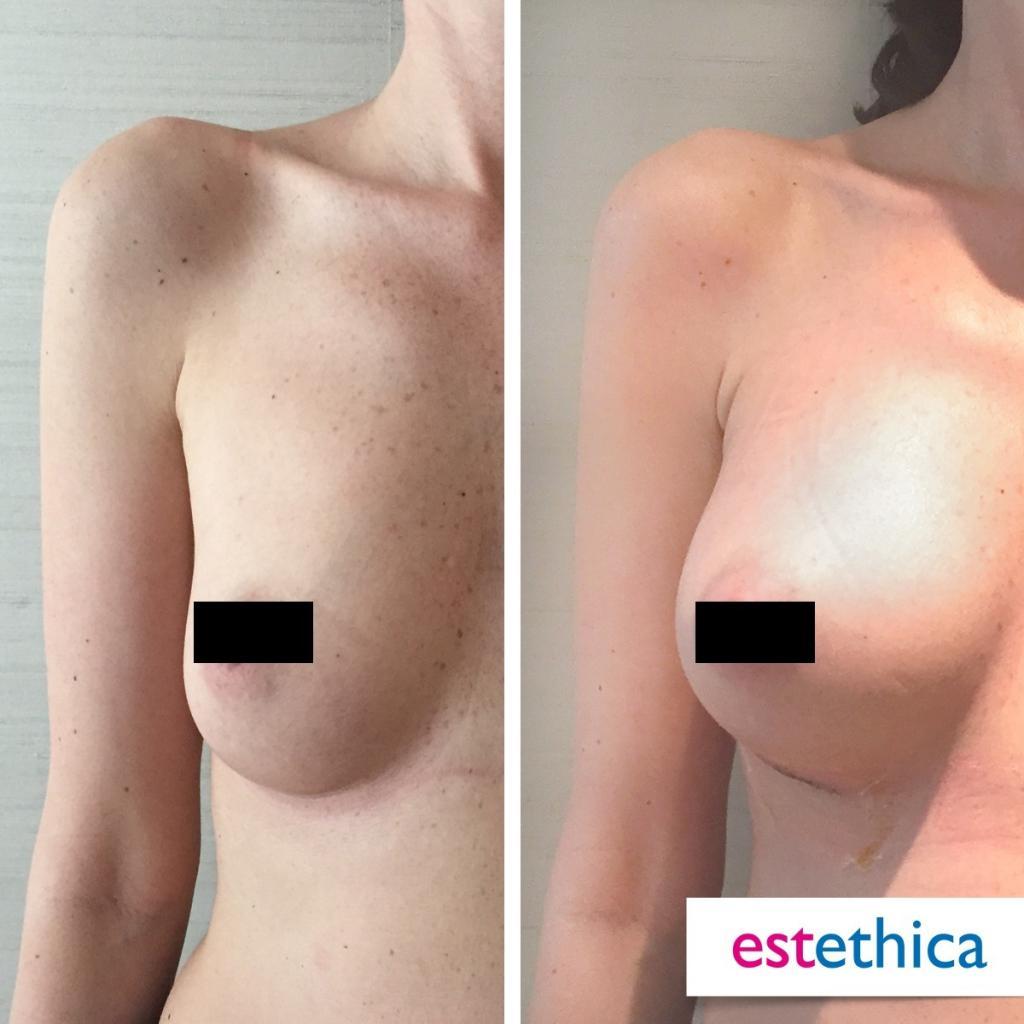resultados operación de aumento de pecho