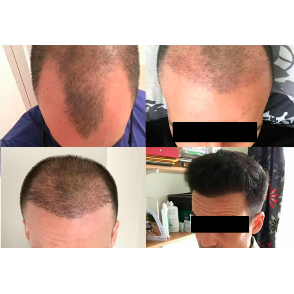 proceso-trasplante-capilar-en-turquia