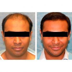 Antes y después trasplante capilar en Estethica Turquía