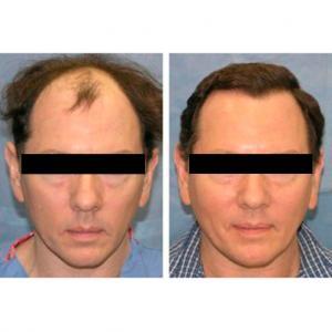 antes y despues del trasplante capilar