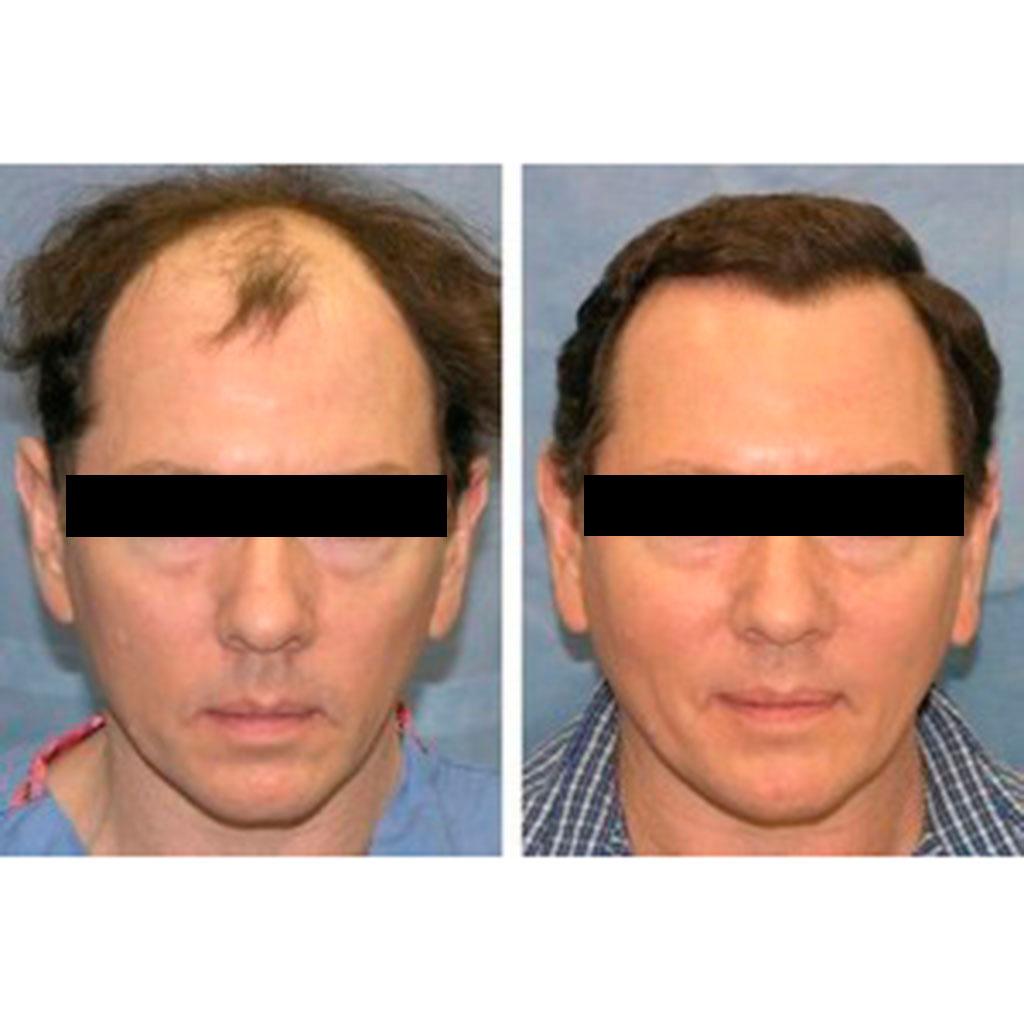trasplante-en-turquia capilar