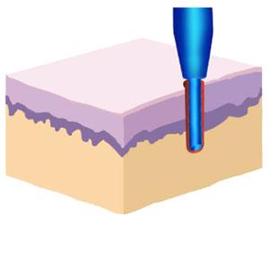 Apertura de canales para trasplante de pelo