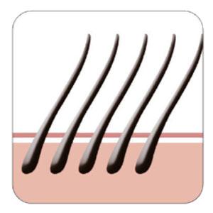 Trasplante capilar pelo a pelo