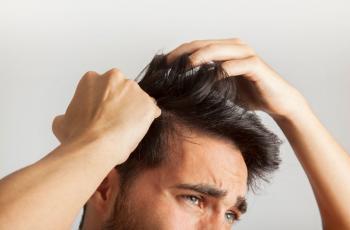 chico con causas de la caida del cabello