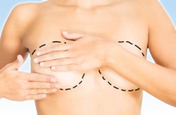 Mujer con operación de aumento de pecho
