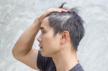 chico como prevenir caida del cabello