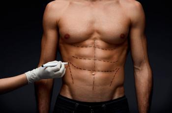 hombre con abdominoplastia en turquia