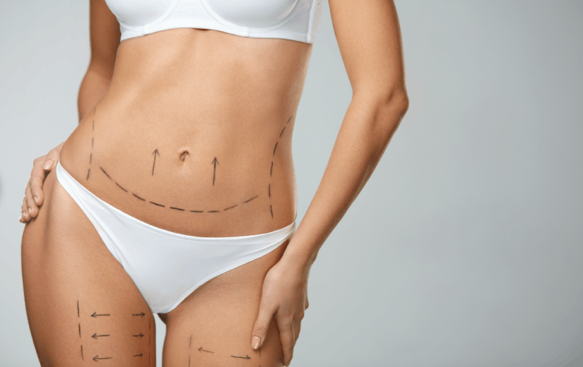 Laser Lipolysis Plus